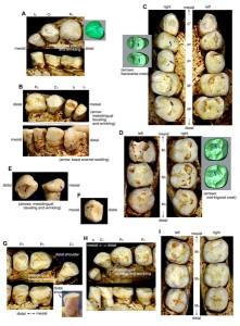 Homo-floresiensis-teeth hobbit